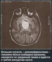 Большая опухоль - краниофарингиома