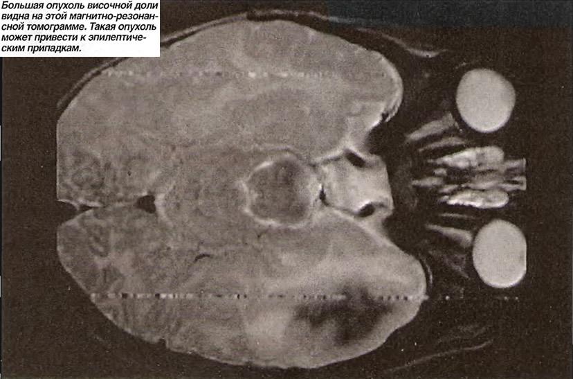 Большая опухоль височной доли видна на этой магнитно-резонансной томограмме