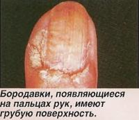 Бородавки, появляющиеся на пальцах рук, имеют грубую поверхность
