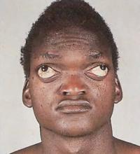 Брахицефалия: высокая заостренная голова и выпученные глаза