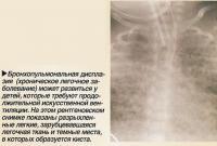 Бронхопульмональная дисплазия (хроническое легочное заболевание)