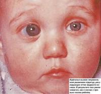 Буфтальм вызван неправильным развитием структур, регулирующих отток жидкости из глаза