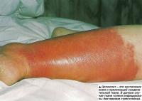Целлюлит - это воспаление кожи и прилежащей соединительной ткани