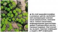 Часть тонкого кишечника, инфицированная криптоспоридиями Cryptosporidium parvum