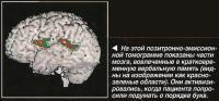 Части мозга, вовлеченные в кратковременную вербальную память