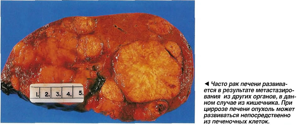 Часто рак печени развивается в результате метастазирования из других органов