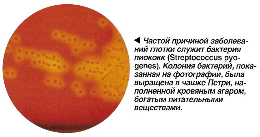 Частой причиной заболеваний глотки служит бактерия пиококк