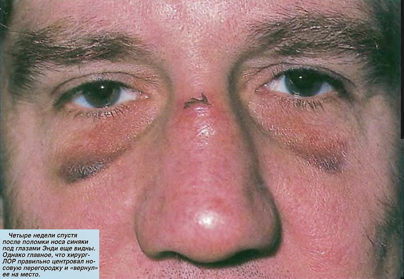 Четыре недели спустя после поломки носа синяки под глазами еще видны