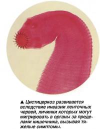Цистицеркоз развивается вследствие инвазии ленточных червей