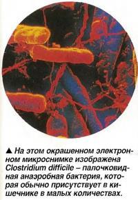 Clostridium difficile - палочковидная анаэробная бактерия