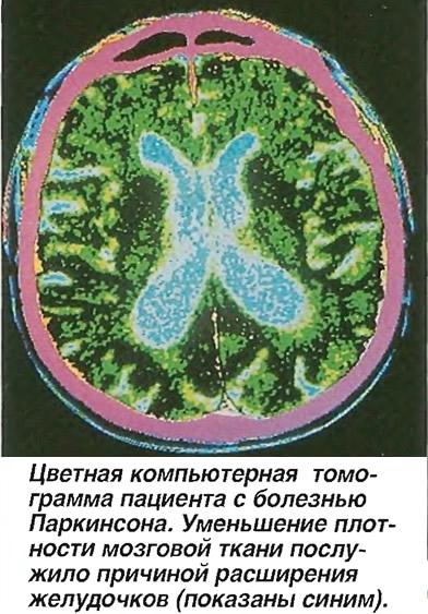Цветная компьютерная томограмма пациента с болезнью Паркинсона