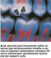 Цветная рентгенограмма зубов