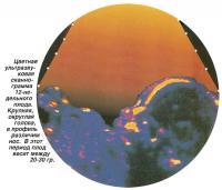 Цветная ультразвуковая сканограмма 12-недельного плода