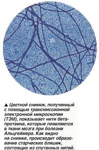 Цветной снимок, полученный с помощью трансмиссионной электронной микроскопии