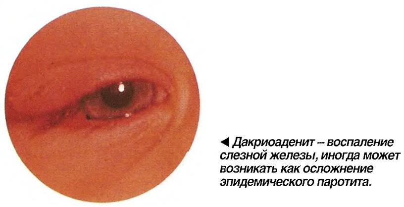 Дакриоаденит - воспаление слезной железы