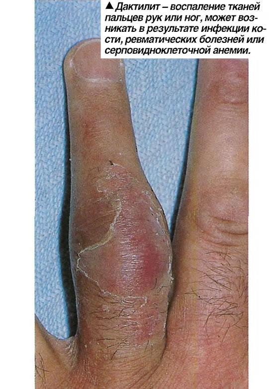 Дактилит - воспаление тканей пальцев рук или ног