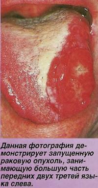 Данная фотография демонстрирует запущенную раковую опухоль