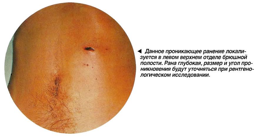 Иглоукалывание в лечении остеохондроза