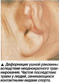 Деформация ушной раковины вследствие неоднократного травмирования