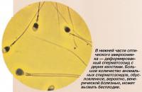Деформированный сперматозоид с двумя хвостами