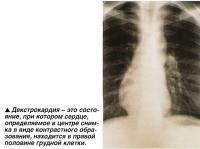 Декстрокардия - это состояние, при котором сердце, определяемое в центре снимка