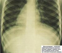 Декстрокардия - расположением сердца в правой половине грудной клетки
