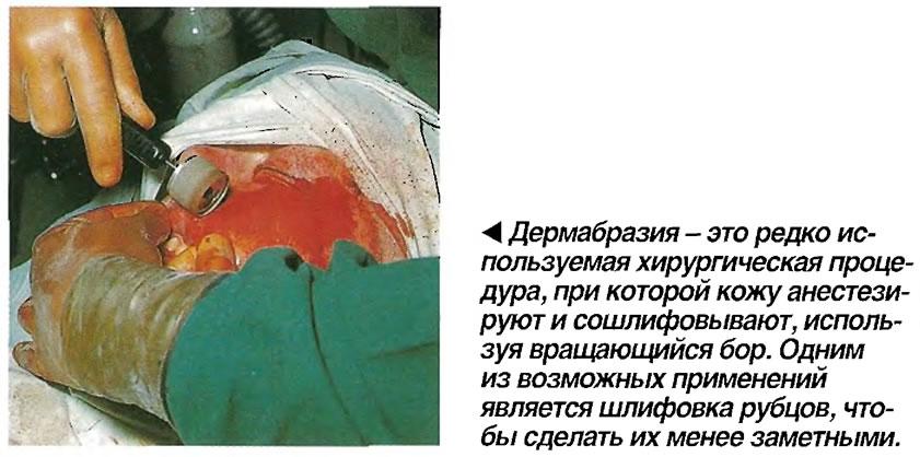 Дермабразия - это редко используемая хирургическая процедура