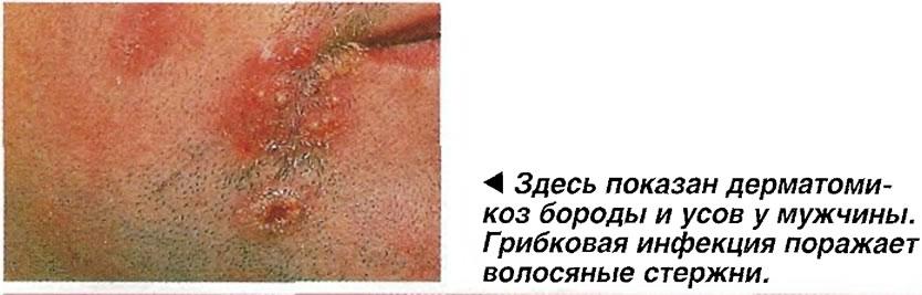 Дерматомикоз бороды и усов у мужчины