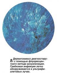 Дерматомикоз диагностируют с помощью флуоресцентного метода визуализации
