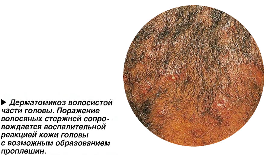 Дерматомикоз волосистой части головы