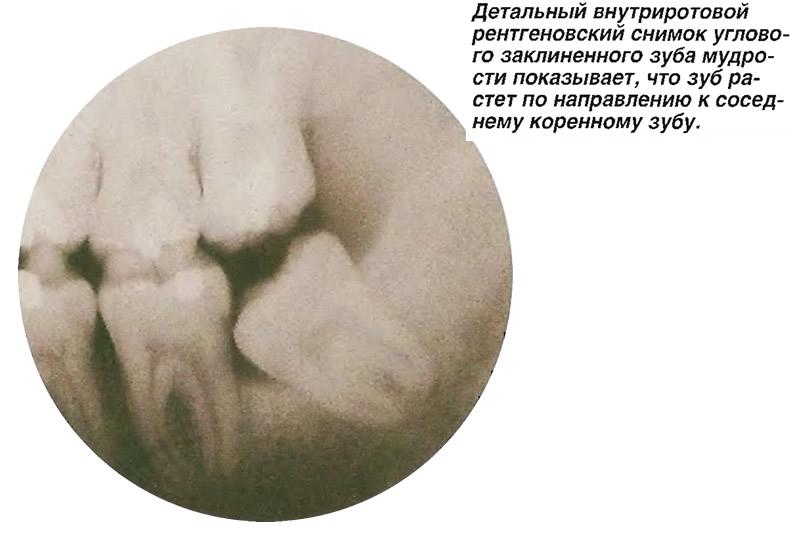 Детальный рентгеновский снимок углового заклиненного зуба мудрости