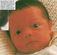 Дети, рожденные в результате кесарева сечения, обычно не имеют физических травм