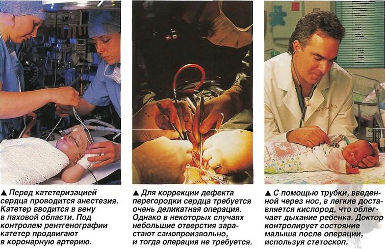 Детская кардиохирургия