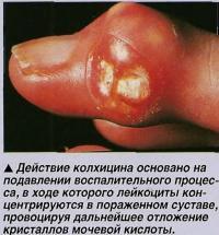 Действие колхицина основано на подавлении воспалительного процесса