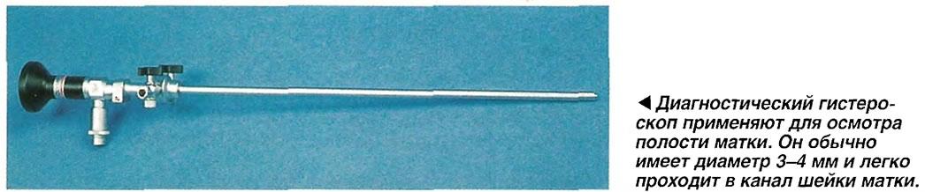 Диагностический гистероскоп применяют для осмотра полости матки