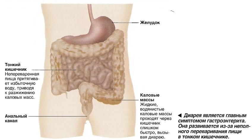 Диарея является главным симптомом гастроэнтерита