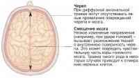 Диффузная аксональная травма