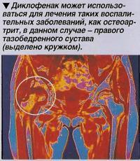 Диклофенак может использоваться для лечения таких воспалительных заболеваний, как остеоартрит