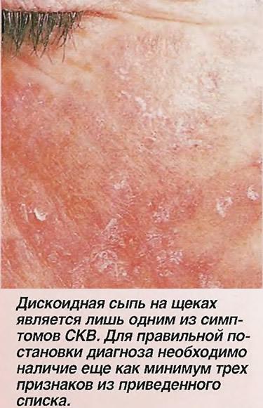 Дискоидная сыпь на щеках является лишь одним из симптомов СКВ