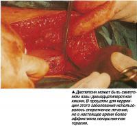 Диспепсия может быть симптомом язвы двенадцатиперстной кишки