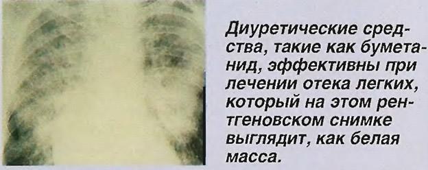 Диуретические средства эффективны при лечении отека легких