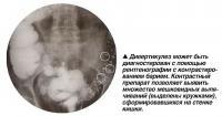 Дивертикулез может быть диагностирован с помощью рентгенографии с контрастированием барием