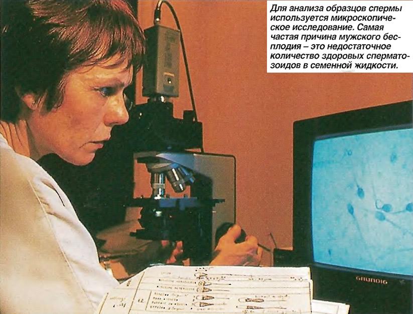 Для анализа образцов спермы используется микроскопическое исследование