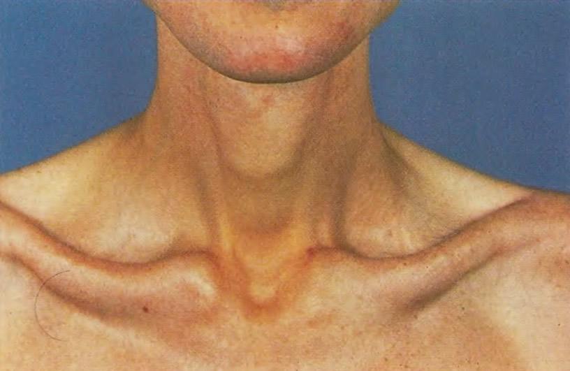 Для анорексии характерна крайняя худоба с выступающими костями