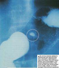 Для диагностики язв проводилась рентгенография с пассажем бариевой взвеси