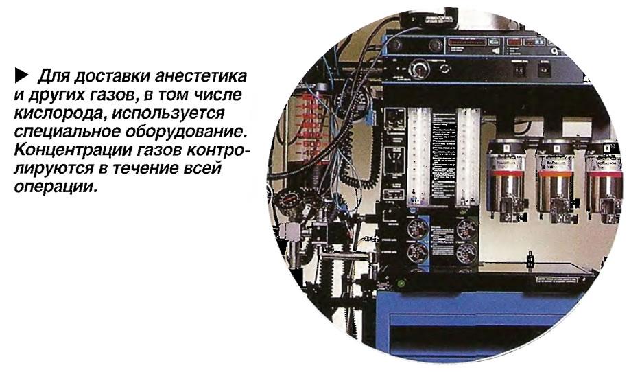 Для доставки анестетика и других газов, в том числе кислорода, используется специальное оборудование