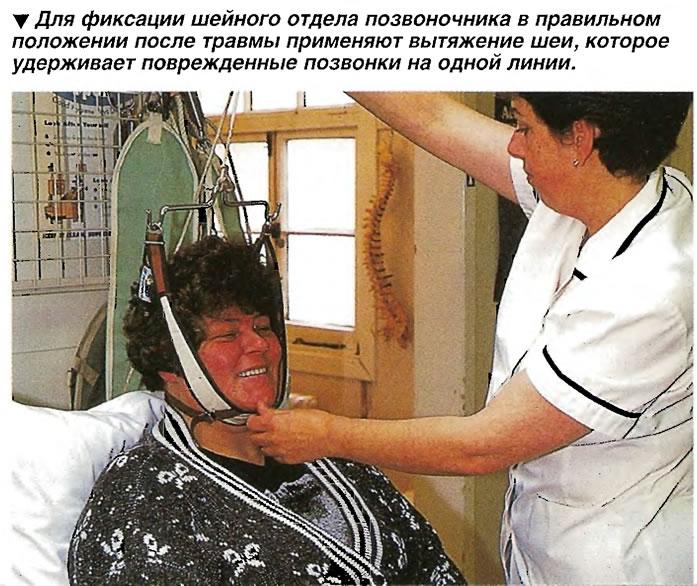 Для фиксации шейного отдела позвоночника в правильном положении после травмы применяют вытяжение шеи