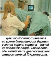 Для хромосомного анализа во время беременности берется участок ворсин хориона