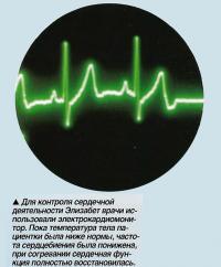 Для контроля сердечной деятельности Элизабет врачи использовали электрокардиомонитор