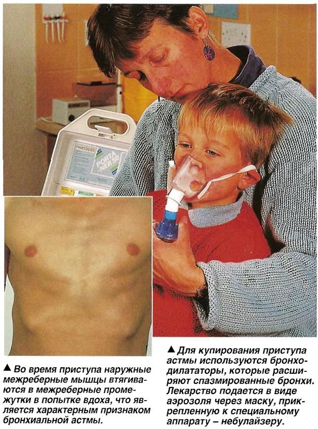 Для купирования приступа астмы используются бронходилататоры